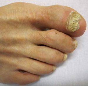 mycoses des pieds sous les ongles