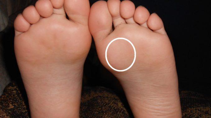 corne au pied